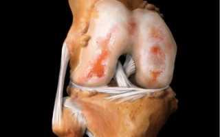Полиартрит коленного сустава: особенности протекания болезни и разновидности патологии, медикаментозные и физиотерапевтические методы лечения, народная медицина