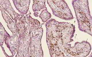 Синовиальная саркома: классификация и причины развития заболевания, клиническая картина и способы диагностики, современные и народные методы лечения, прогноз для жизни
