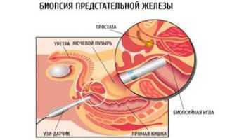 Биопсия предстательной железы: последствия, отзывы, как проводится, подготовка, как делают