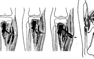 Посттравматический остеомиелит: клинические проявления и признаки заболевания, современные способы терапии и диагностические мероприятия, препараты и хирургическое вмешательство