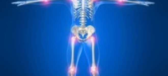 Виды артритов и их диагностика: клинический осмотр, лабораторное исследование, рентгенография и ультразвуковые методики определения заболевания