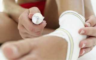 Мазь при растяжении мышц и связок: условия хранения, когда выписываются, обзор эффективных средств, какое средство лучше выбрать