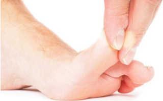 Перелом мизинца на ноге: классификация травмы, отличительные симптомы и методы диагностики, способы лечения и реабилитационный период, возможные осложнения