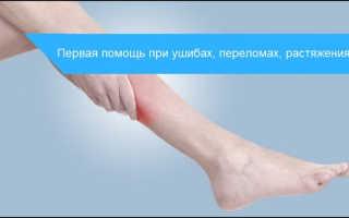 Ушиб ноги: степени повреждения, характерные симптомы и отличие от перелома, алгоритм действий при оказании первой помощи и лечение медикаментами и народными средствами
