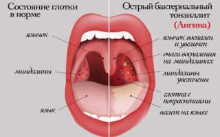 Чем полоскать горло при ангине в домашних условиях: обзор эффективных лекарственных препаратов и рецептов народной медицины, правила и нюансы проведения процедуры
