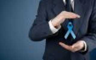 Рак предстательной железы (простаты): от подозрения к лечению