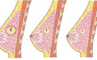 Фиброаденома молочной железы — что это такое? (ФОТО)