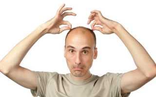 Средства от выпадения волос у мужчин — Сайт о мужском здоровье