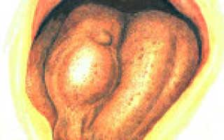 Как проявляется сифилис во рту на разных стадиях