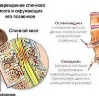 Лечение шейного спондилеза народными средствами в домашних условиях: симптомы заболевания, диагностика, эффективные рецепты для восстановления и профилактики