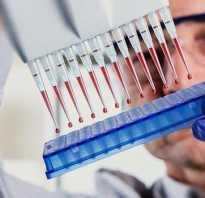 Цистит с кровью лечение препараты — Без цистита
