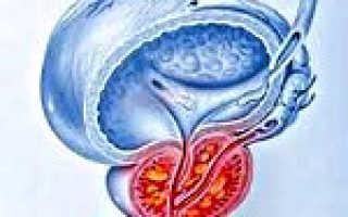 Вирусный простатит: предрасполагающие факторы и почему возникает заболевание, как проявляется болезнь и терапевтические мероприятия, методы диагностики