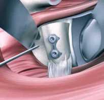 Операция латарже: правила подготовки, возможные последствия, сколько стоит, эффективность, восстановление после