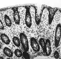 Ротавирус: как развивается заболевание и способы заражения, клиническая картина патологии, методики терапии и профилактики