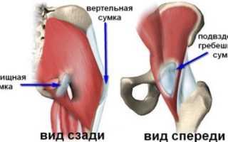 Боль в тазобедренном суставе: причины появления симптома, возможные заболевания и их особенности, методы диагностики и варианты лечения, рецепты народной медицины