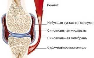 Лечение синовита коленного сустава в домашних условиях: причины заболевания, стадии развития, диагностика, рекомендации по применению средств народной медицины