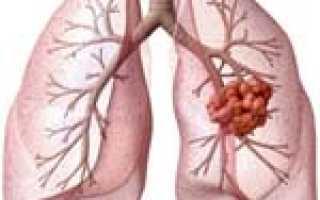 Стадии рака легких: прогноз и причины появления, виды и сопутствующие проявления онкологии, вкакие органы чаще всего метастазирует болезнь