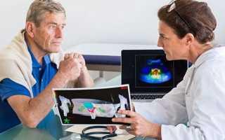 Виды рецидива рака простаты после радикальной простатэктомии