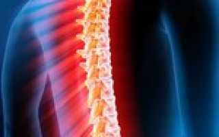 Миелит: классификация и причины развития патологии, методы диагностики и симптомы с учетом вида болезни, современные и народные способы лечения, последствия и прогноз