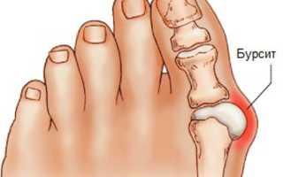 Бурсит большого пальца стопы: причины и механизм развития, фото патологии на разных стадиях, симптомы, диагностика и лечение ортопедическим конструкциями, медикаментами и народными средствами