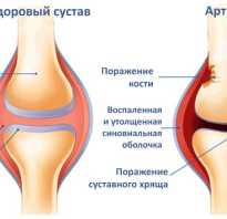 Как лечить артрит коленного сустава в домашних условиях: терапия народными средствами и рекомендации врачей, физические процедуры и лечебная гимнастика, рецепты настоев, мазей и компрессов