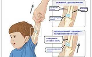 Подвывих головки лучевой кости: механизм получения травмы, характерные симптомы и методы диагностики, правила оказания первой помощи и техника вправления