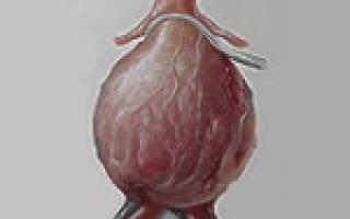 Аневризма аорты брюшной полости: способы диагностики и механизм развития болезни, клиническая картина патологии и открытое хирургическое вмешательство