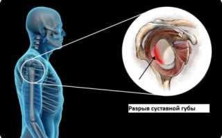 Разрыв суставной губы плечевого сустава: причины и признаки повреждения, наиболее эффективные методы лечения и сроки реабилитации