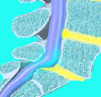 Ретролистез позвонка: что это такое, причины и классификация, признаки развития, диагностика и лечение заболевания