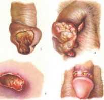 Сифилис на члене — как выглядит, чем опасен, как лечить