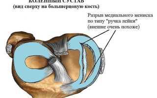 Мениск коленного сустава: разновидности, особенности строения и функции хрящевого образования, возможные повреждения и методы их лечения, осложнения травм
