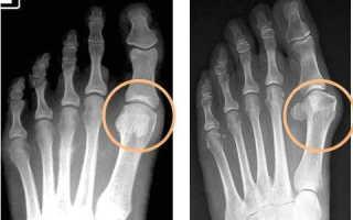 Как лечить подагру на ногах в домашних условиях: признаки заболевания, медикаментозные и народные способы терапии, рекомендации по питанию и профилактике патологии