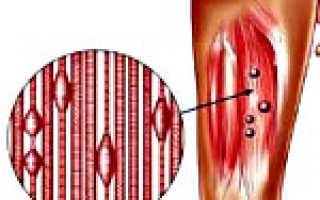 Миофасциальный синдром: признаки и клиническая картина патологии, диагностика и способы терапии, всегдали подходит мануальная терапия