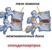 Лечение грудного спондилоартроза народными средствами: причины, симптомы и диагностика патологии, возможные осложнения и рецепты средств для использования в домашних условиях