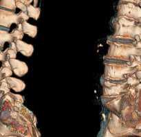 Остеохондроз позвоночника с корешковым синдромом: причины и симптомы возникновения патологии, диагностика илечение заболевания, народные рецепты