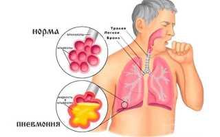 Пневмония: что это, возбудители, факторы риска, виды и классификация, клиническая картина, диагностические исследования, консервативная терапия, профилактические меры