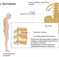 Массаж при болезни бехтерева: эффективность процедуры, показания и противопоказания, подготовка и особенности проведения