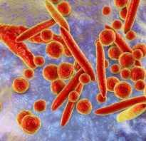 Лейкоциты в спермограмме у мужчин: норма и повышенные показатели
