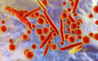 Лейкоциты в спермограмме повышены у мужчин — Электронная регистратура