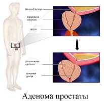 Виды операций по удалению аденомы предстательной железы
