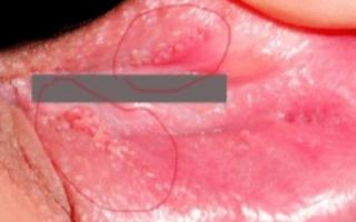 Появилась болячка на половой губе: лечение и причины.