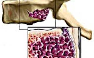 Гемангиолипома позвоночника: признаки и клиническая картина, классификация и причины возникновения, способы диагностики и лечебные мероприятия, профилактика и прогноз
