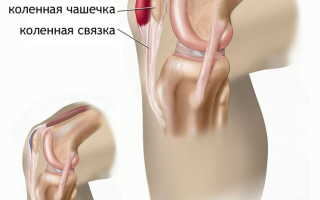 Лечение бурсита локтевого и коленного суставов в домашних условиях: симптомы и диагностика патологии, показания к применению аптечных и народных средств