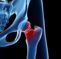 Чрезвертельный перелом бедра: симптомы, первая помощь, лечение в домашних условиях и реабилитация, профилактика и укрепление костей