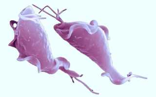 Трихомонада: откуда берется и какие симптомы вызывает.