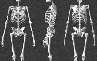 Туберкулез костей и суставов: виды и классификация, основные причины, симптомы и первые признаки, диагностические мероприятия, тактика лечения, антибактериальные препараты, диета и образ жизни