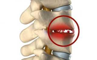 Спондилодисцит: причины, симптомы, диагностика, медикаментозные и хирургические методы лечения, профилактика
