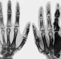 Остеосклероз: причины развития, виды, симптомы, методы диагностики, лечение, возможные последствия и профилактика