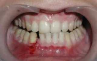 Болит челюсть: перелом костей и его виды, первая помощь, алгоритм действий, когда нужно обращаться к врачу, лечение и профилактика