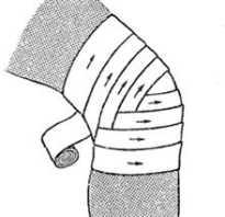 Черепашья повязка: виды и схемы наложения, показания к применению, когда рекомендована